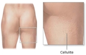 Boca Raton Cellulite Treatment