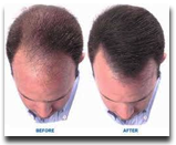 Hair Restoration Bauman Medical Group Boca Raton